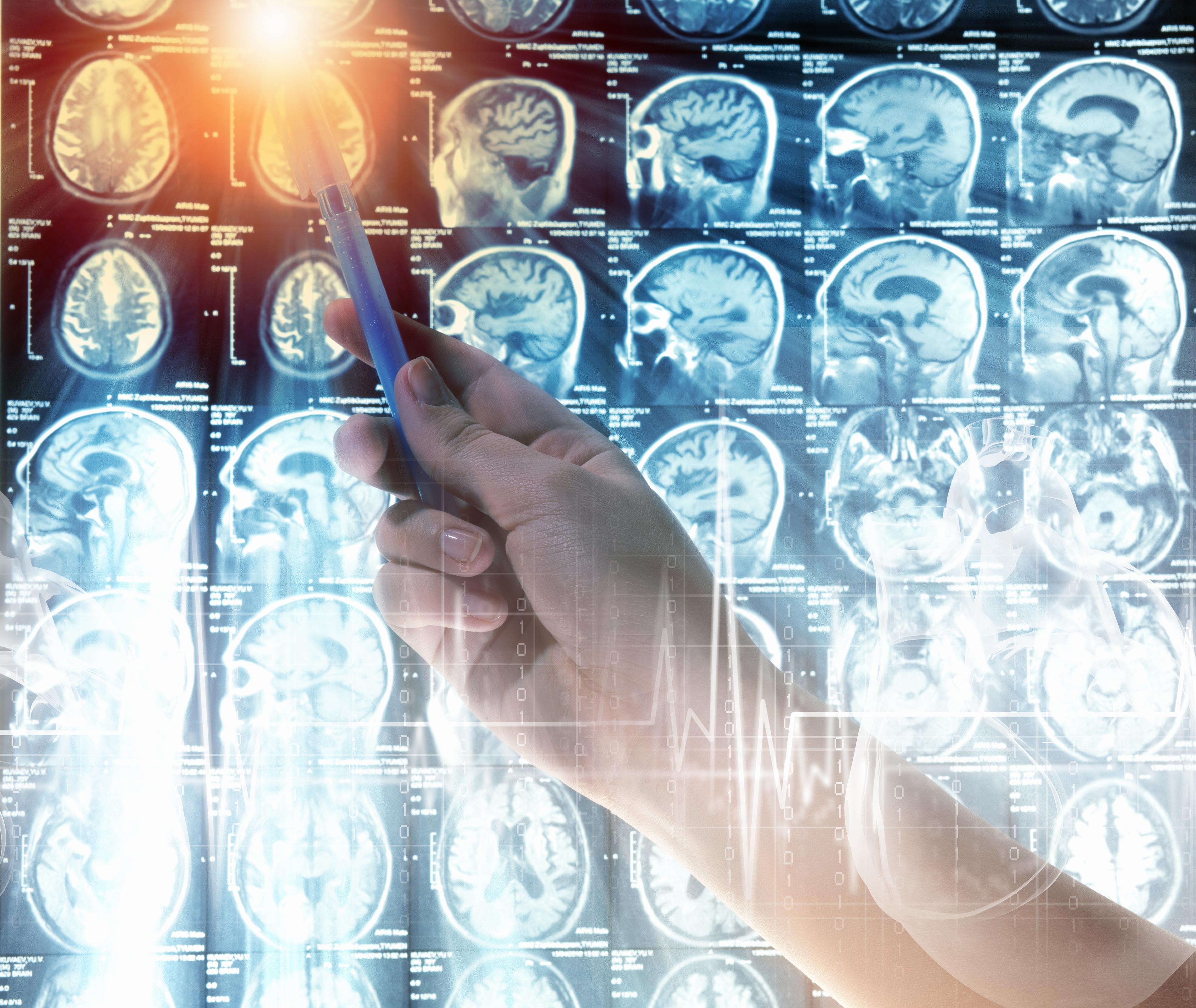 Компьютерный анализ обнаружил связанные с аутизмом и раком мутации